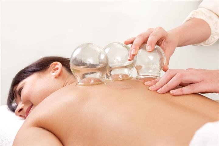 Cupping Therapy at Med Massage and Wellness Clinic