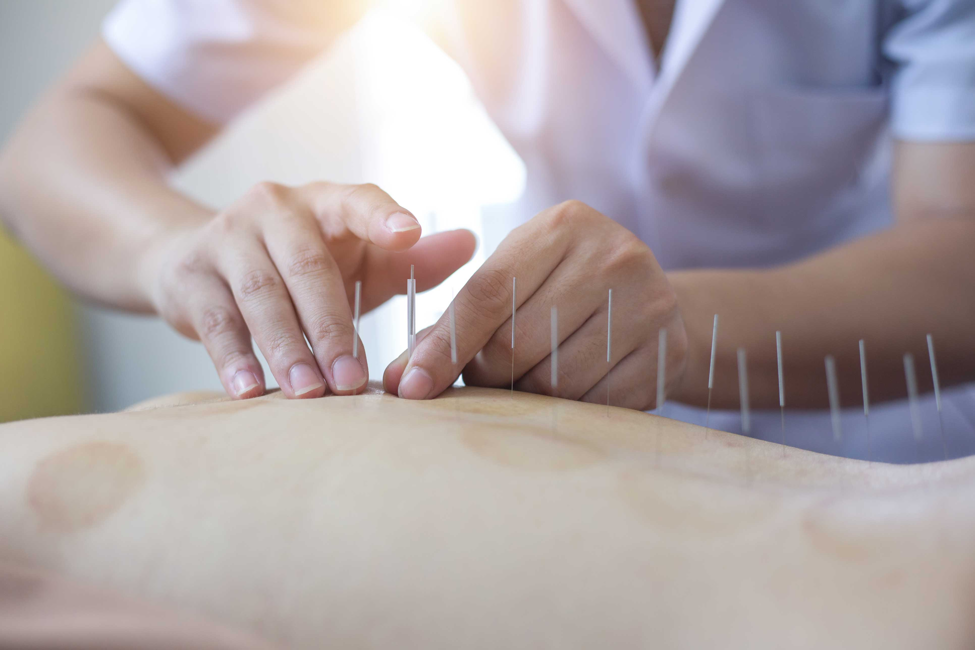 acupuncture at Med Massage and Wellness Clinic